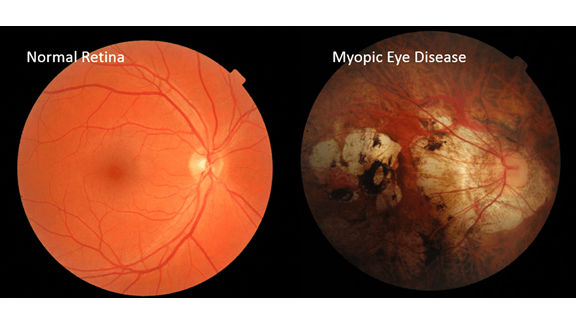 Normal Eye and Myopic Eye Comparison