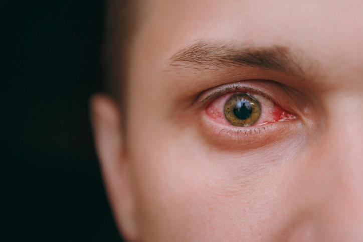 Ocular Health