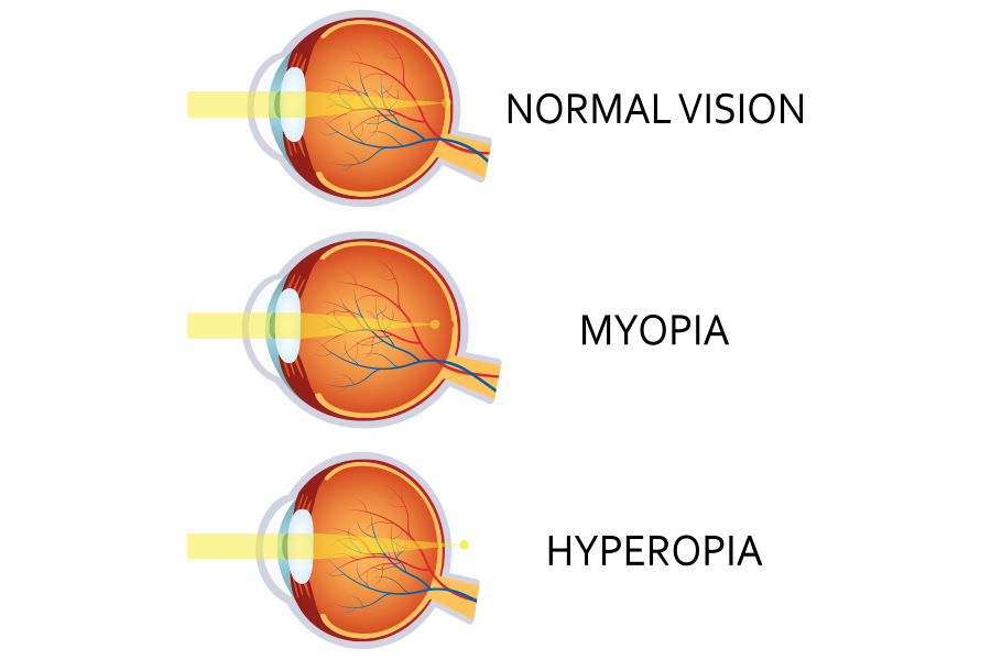 What is Myopia? - Precision Eye Care